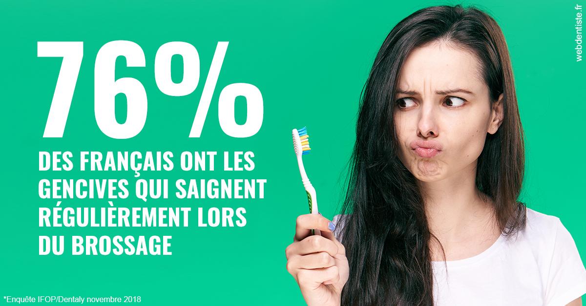 https://dr-amory-christophe.chirurgiens-dentistes.fr/76% des Français 1